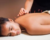 acupuncture-chicago